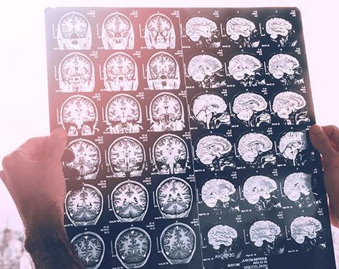 Intel-mengembangkan-AI-untuk-deteksi-dini-tumor-otak